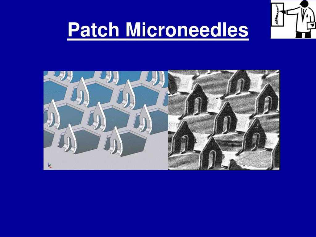 Patch Microneedles