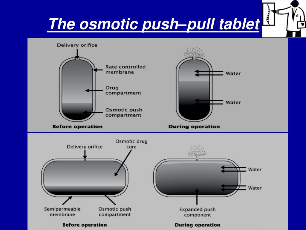 The osmotic push–pull tablet