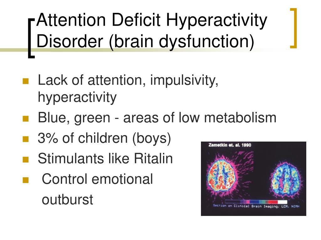 attention-deficit/hyperactivity disorder research paper Free essays available online are good but they will not follow the guidelines of your particular writing assignment if you need a custom term paper on science reports: attention deficit hyperactivity disorder (adhd), you can hire a professional writer here to write you a high quality authentic essay.