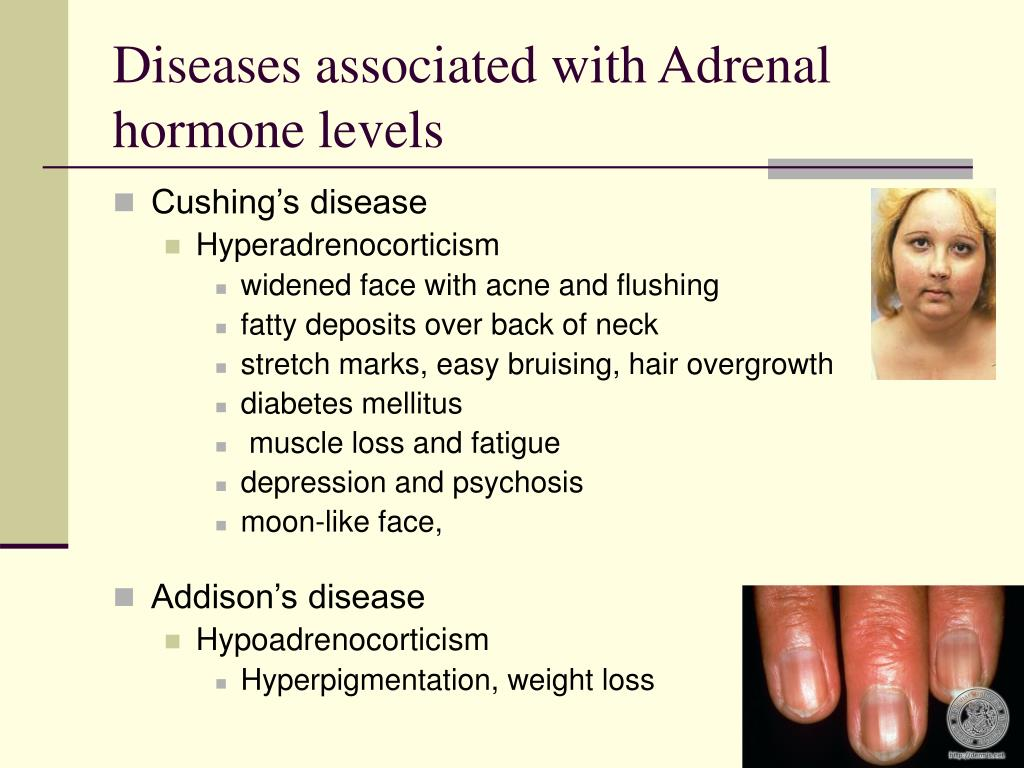 Diseases associated with Adrenal hormone levels