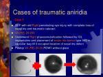 cases of traumatic aniridia