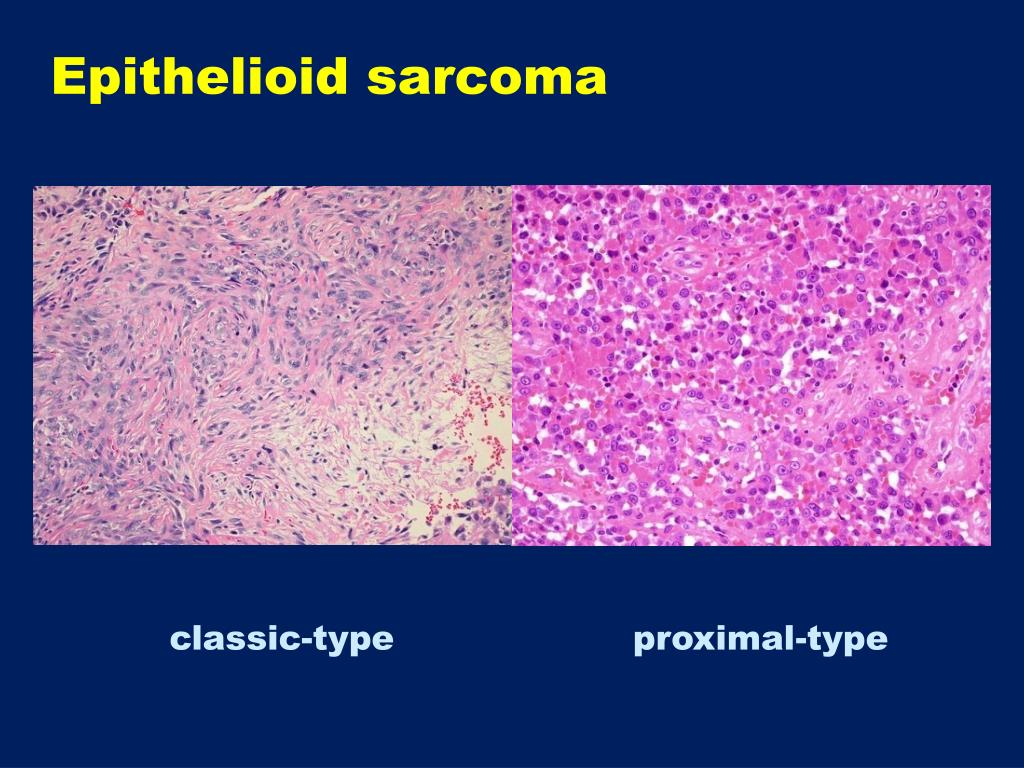 Epithelioid sarcoma