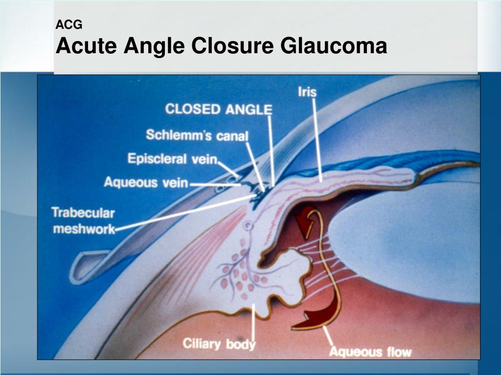 Natural Treatment For Narrow Angle Glaucoma
