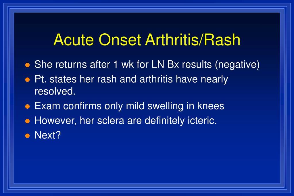 Acute Onset Arthritis/Rash