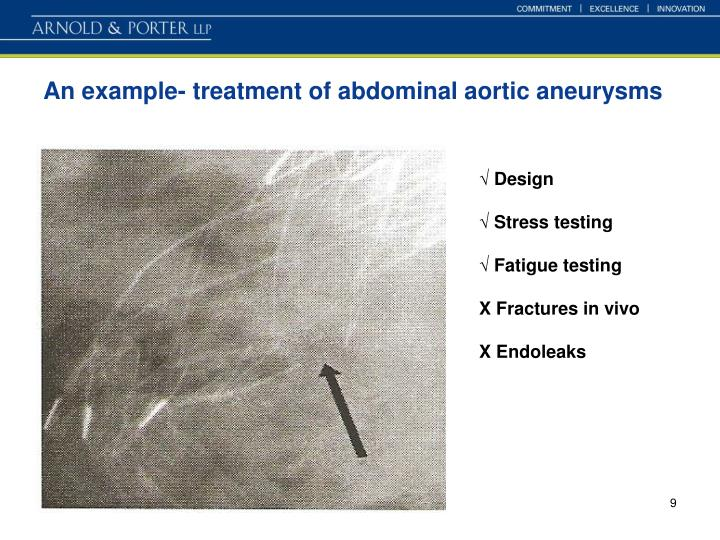 An example- treatment of abdominal aortic aneurysms