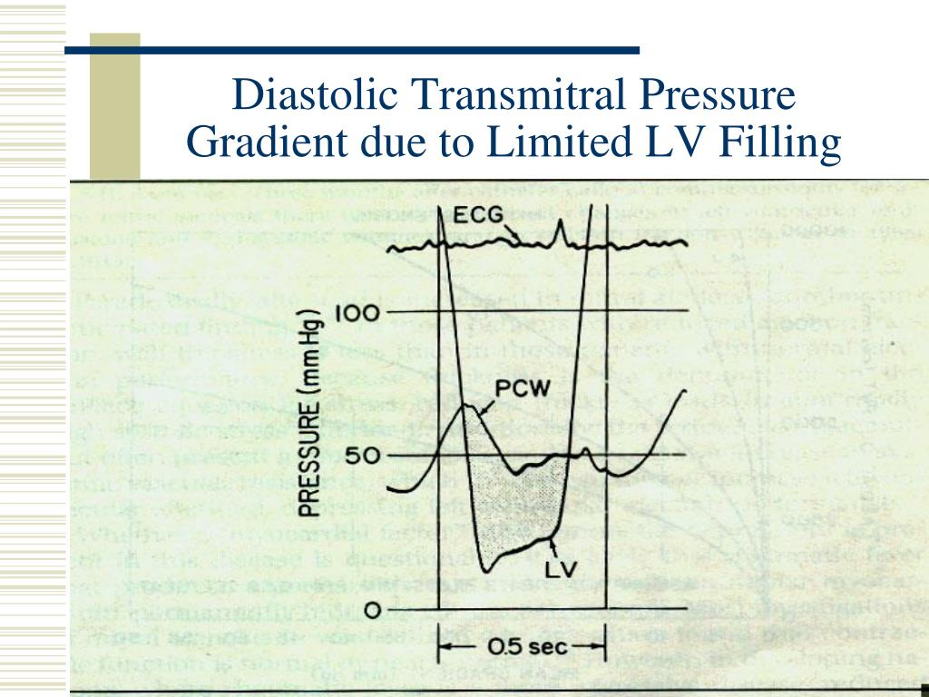 Diastolic Transmitral Pressure Gradient due to Limited LV Filling
