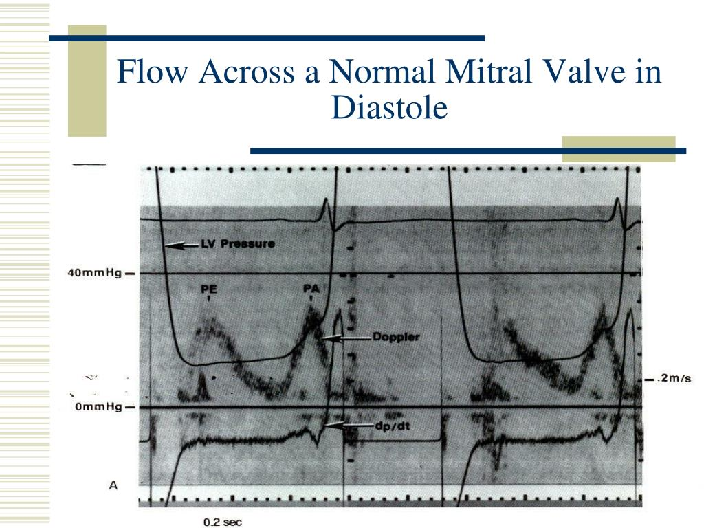 Flow Across a Normal Mitral Valve in Diastole