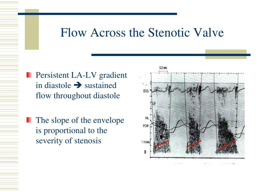 Flow Across the Stenotic Valve