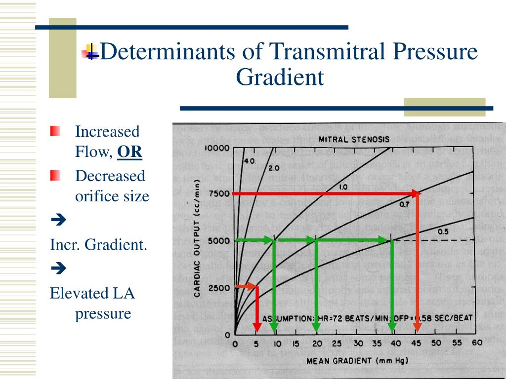 Determinants of Transmitral Pressure Gradient