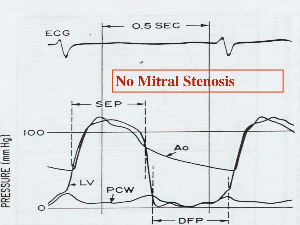 No Mitral Stenosis