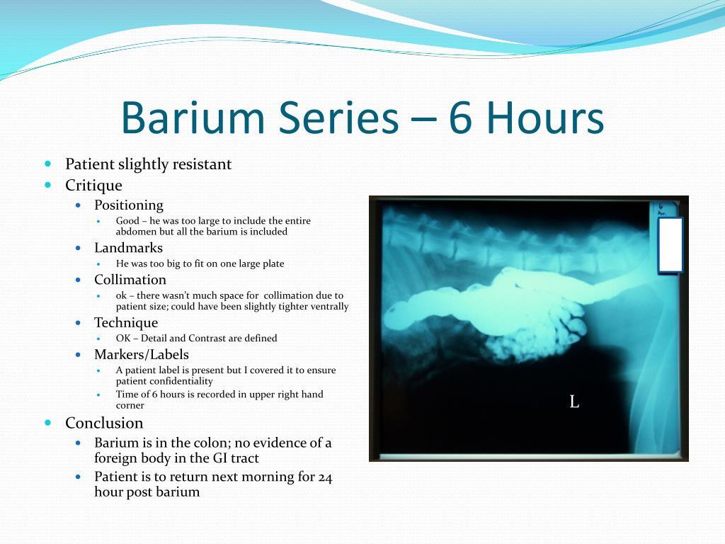 Barium Series – 6 Hours