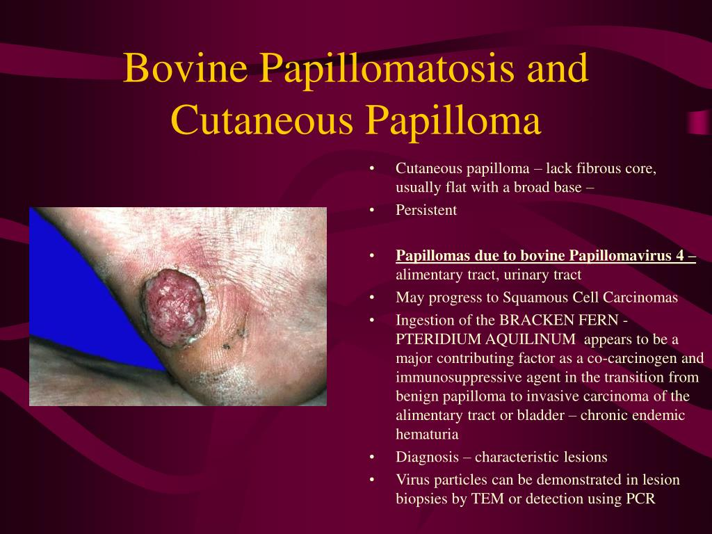 Bovine Papillomatosis and Cutaneous Papilloma