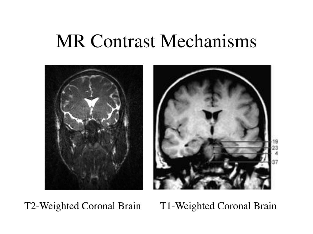 MR Contrast Mechanisms
