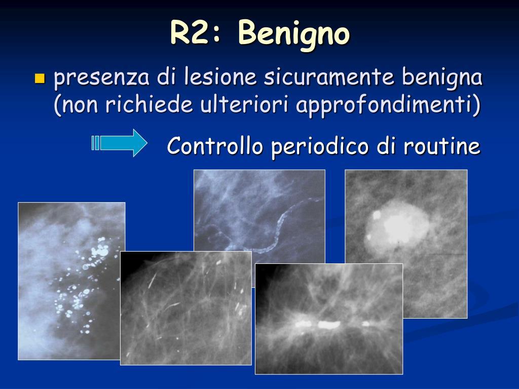 R2: Benigno