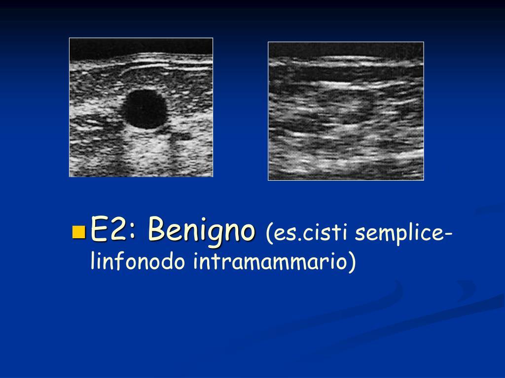 E2: Benigno