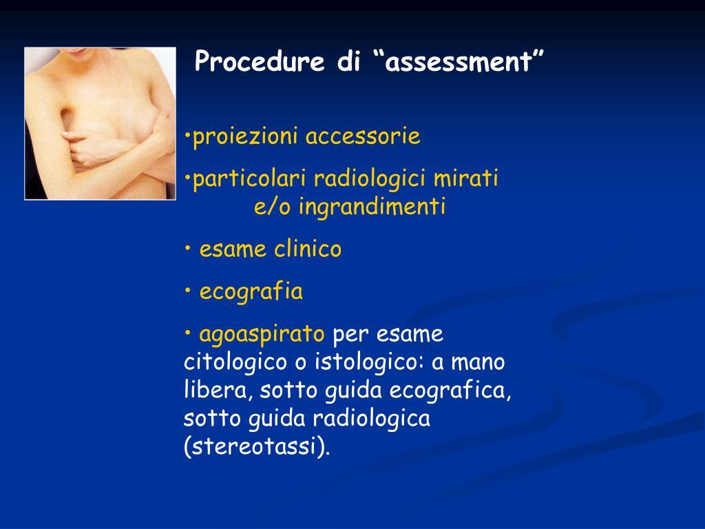 "Procedure di ""assessment"""