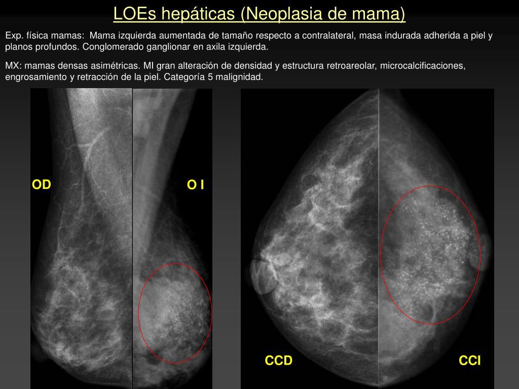 LOEs hepáticas (Neoplasia de mama)