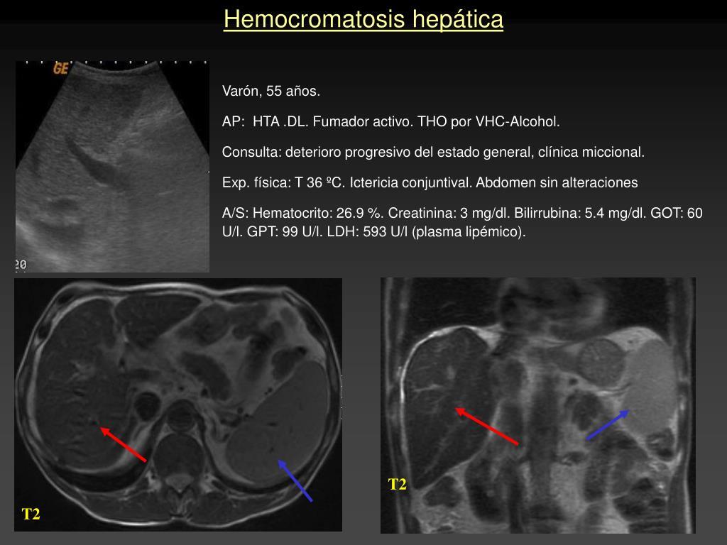 Hemocromatosis hepática