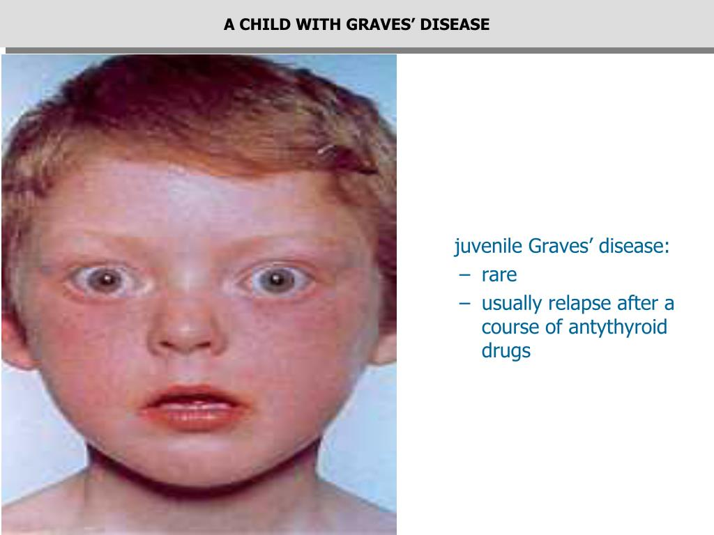 A CHILD WITH GRAVES' DISEASE