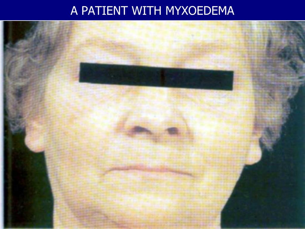 A PATIENT WITH MYXOEDEMA