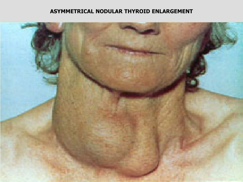 ASYMMETRICAL NODULAR THYROID ENLARGEMENT