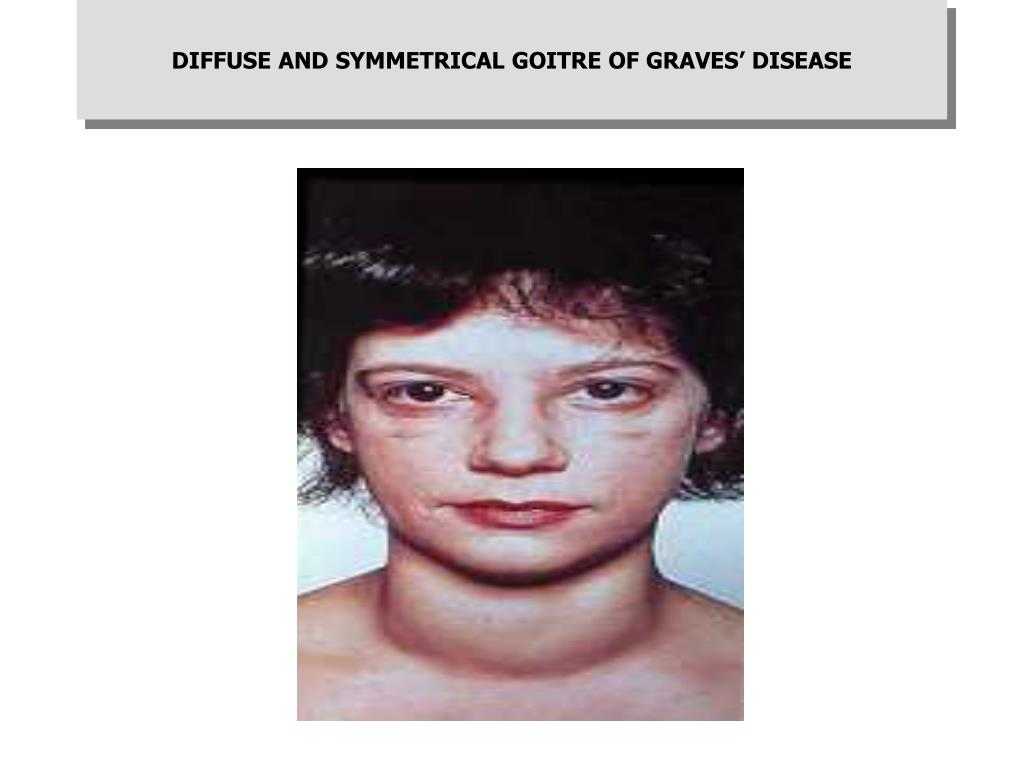 DIFFUSE AND SYMMETRICAL GOITRE OF GRAVES' DISEASE