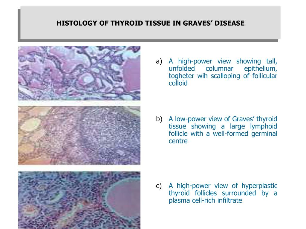 HISTOLOGY OF THYROID TISSUE IN GRAVES' DISEASE