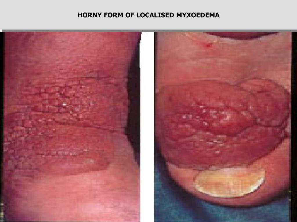 HORNY FORM OF LOCALISED MYXOEDEMA
