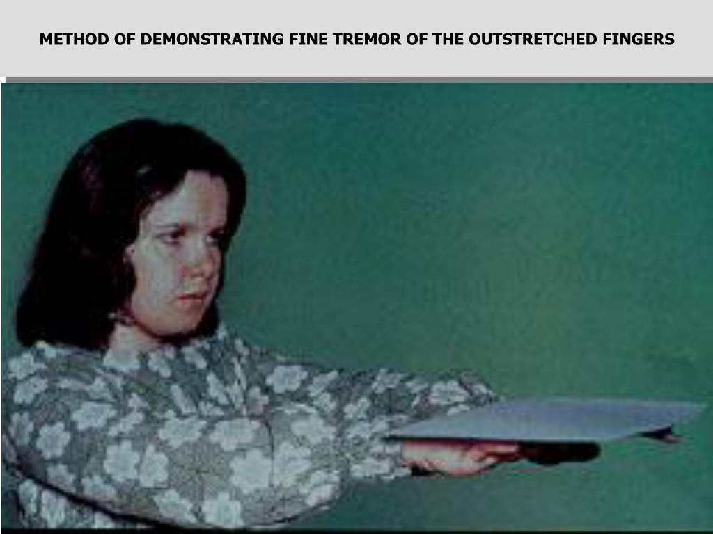 METHOD OF DEMONSTRATING FINE TREMOR OF THE OUTSTRETCHED FINGERS