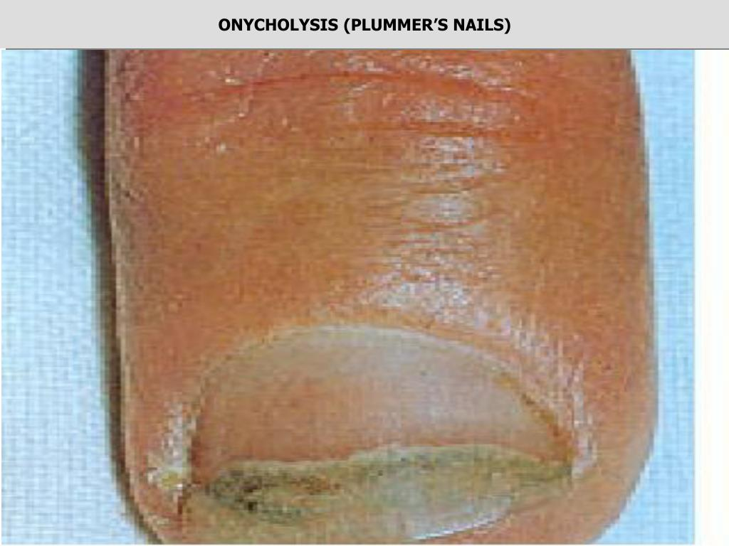 ONYCHOLYSIS (PLUMMER'S NAILS)