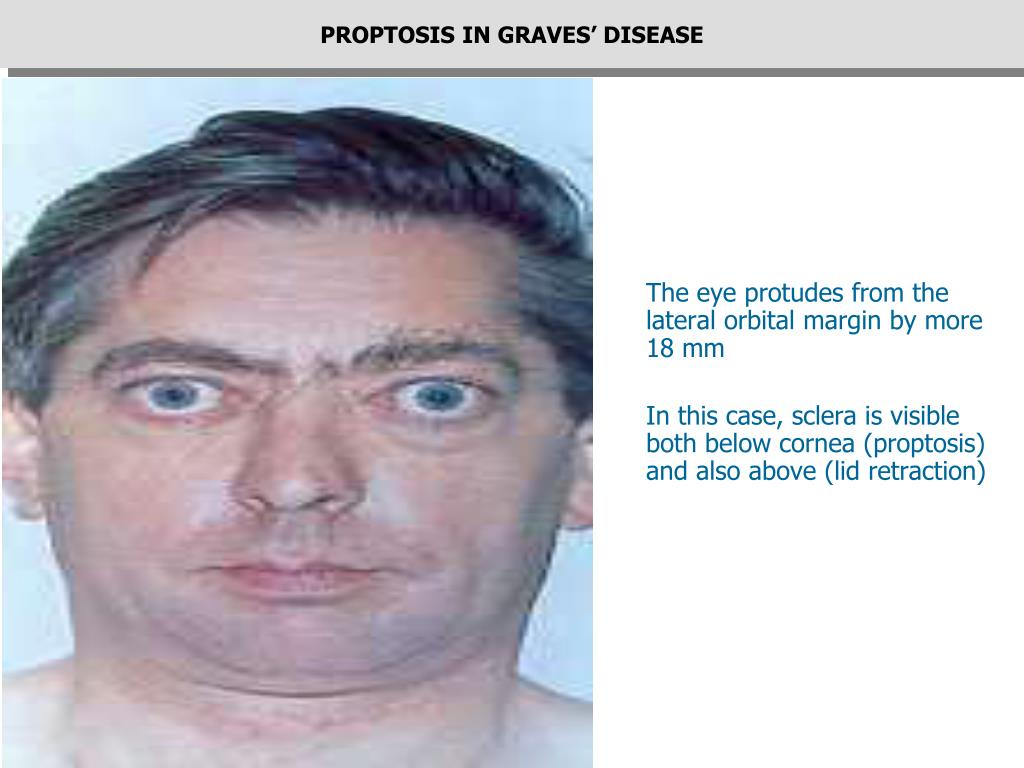 PROPTOSIS IN GRAVES' DISEASE