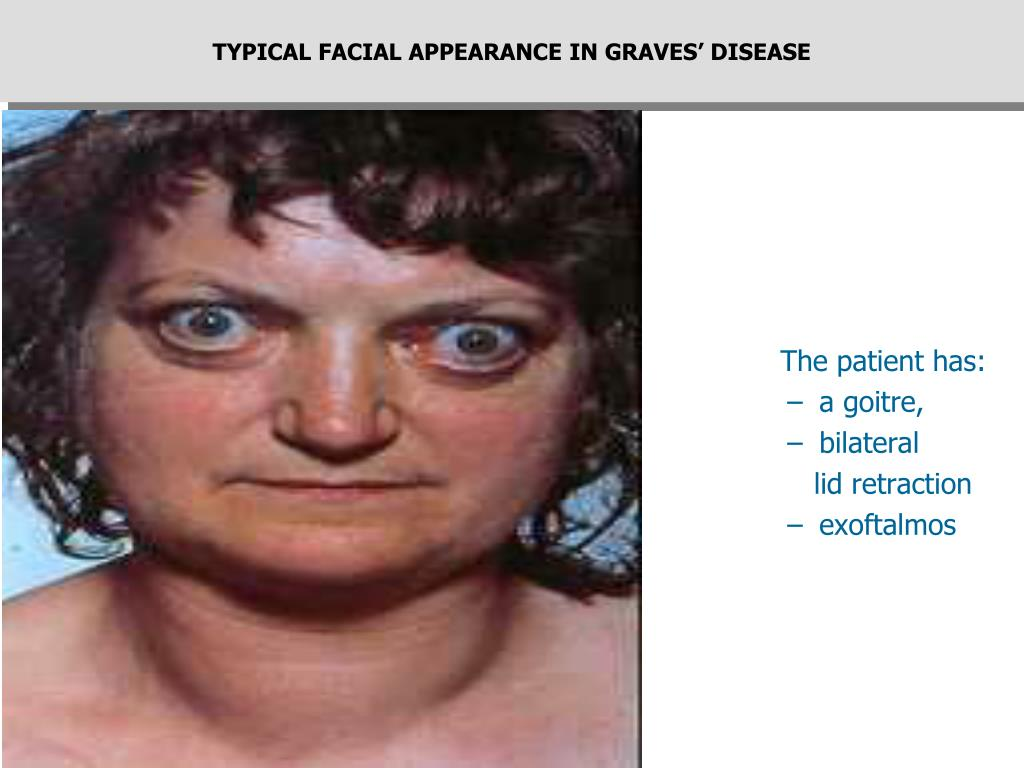TYPICAL FACIAL APPEARANCE IN GRAVES' DISEASE