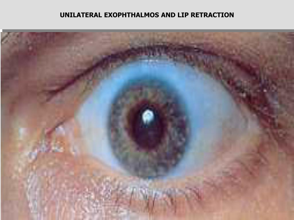 UNILATERAL EXOPHTHALMOS AND LIP RETRACTION