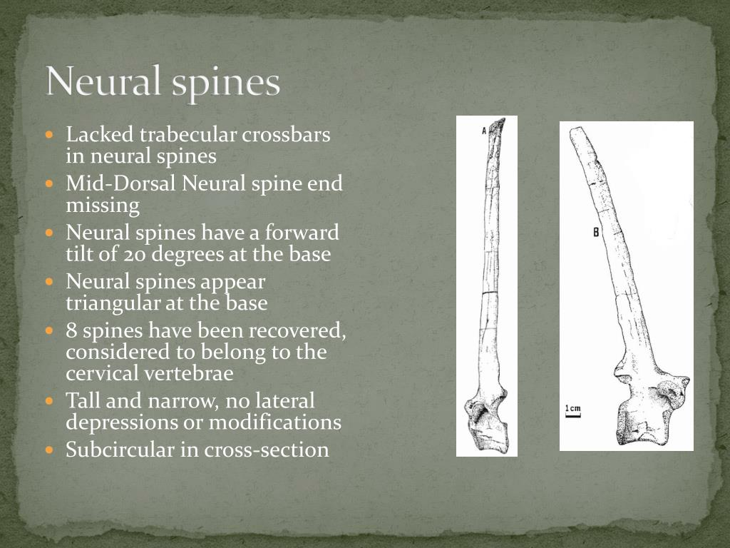 Neural spines