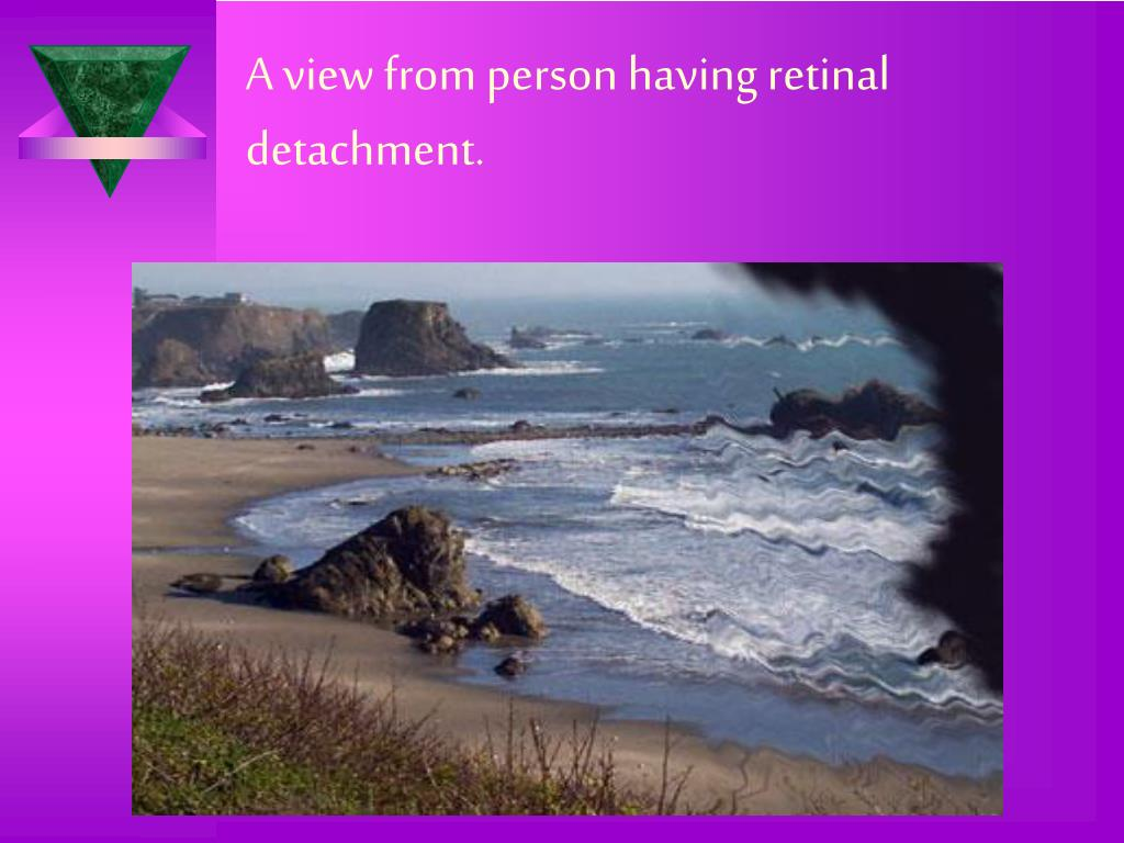 A view from person having retinal detachment.