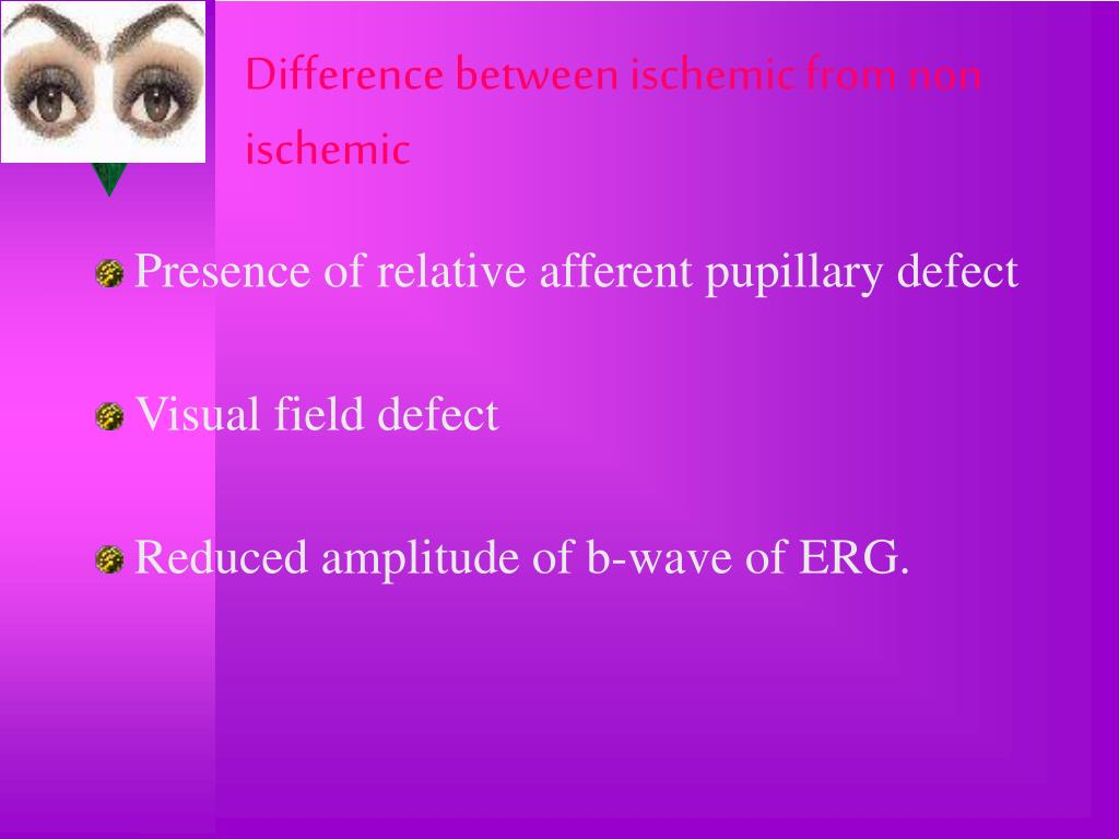 Difference between ischemic from non ischemic