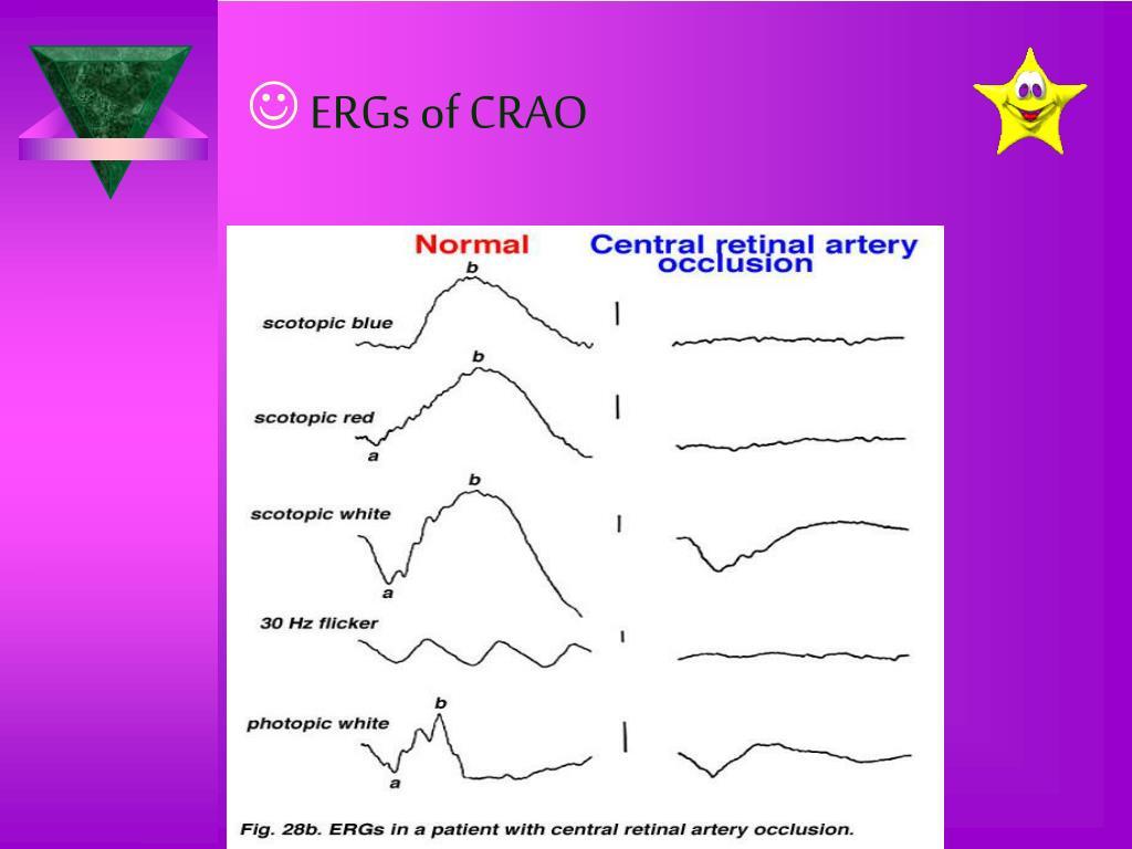 ERGs of CRAO