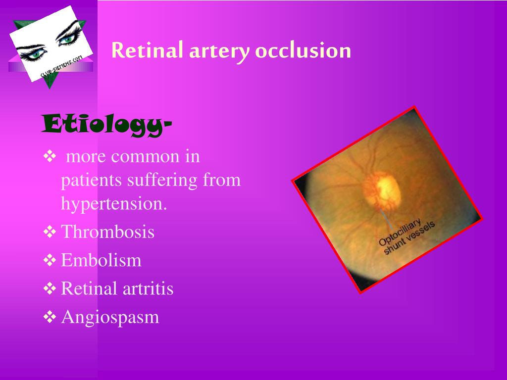 Retinal artery occlusion