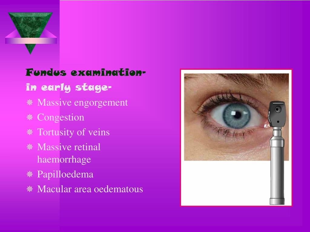 Fundus examination-