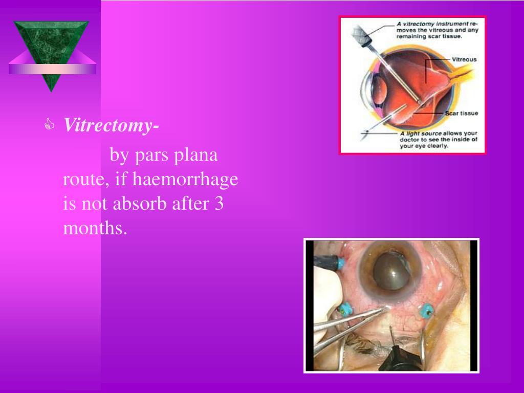 Vitrectomy-
