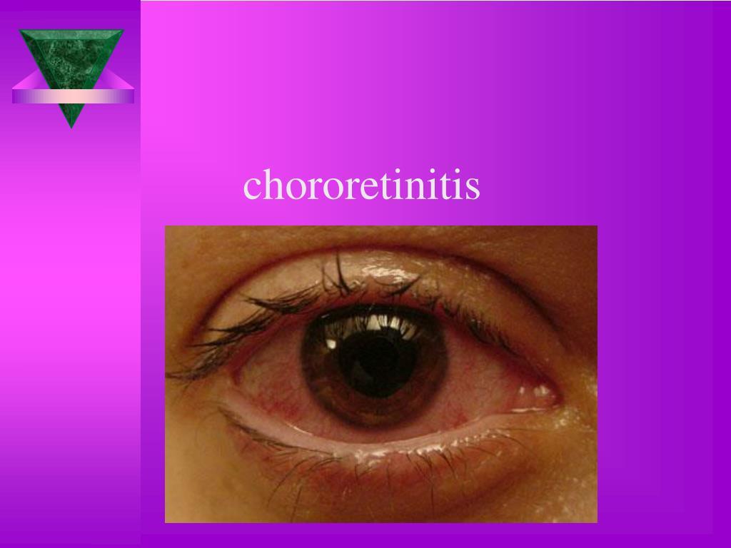 chororetinitis