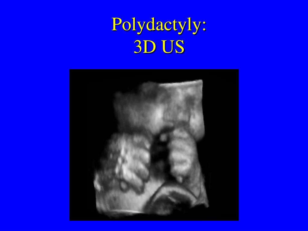 Polydactyly:
