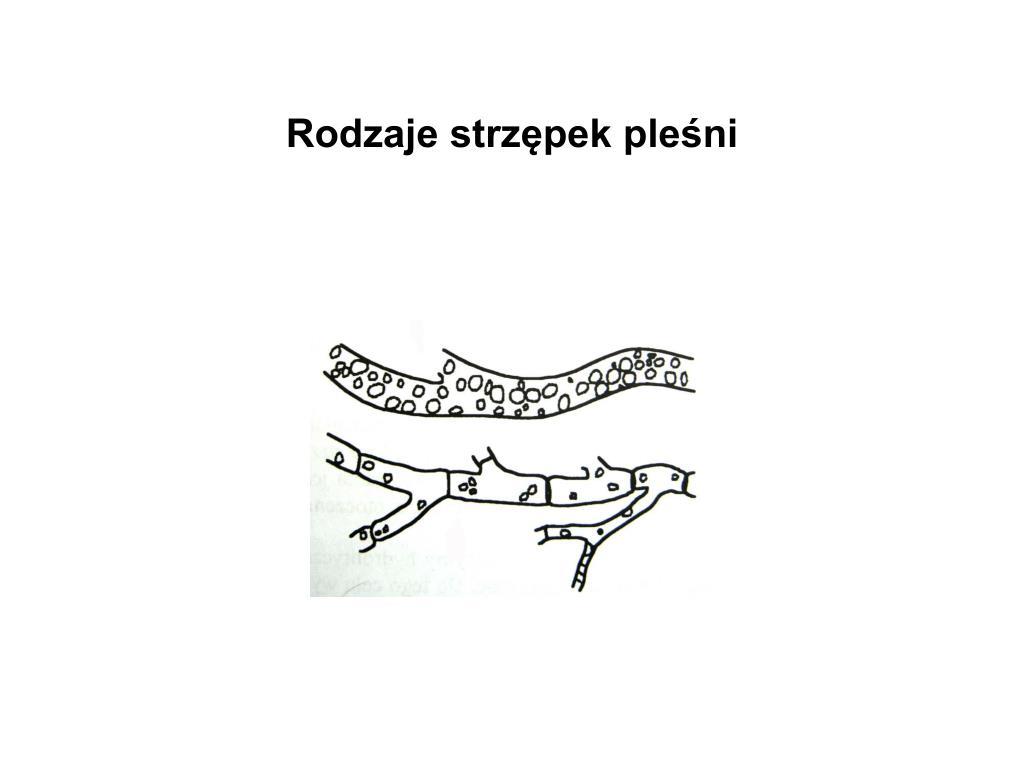Rodzaje strzępek pleśni