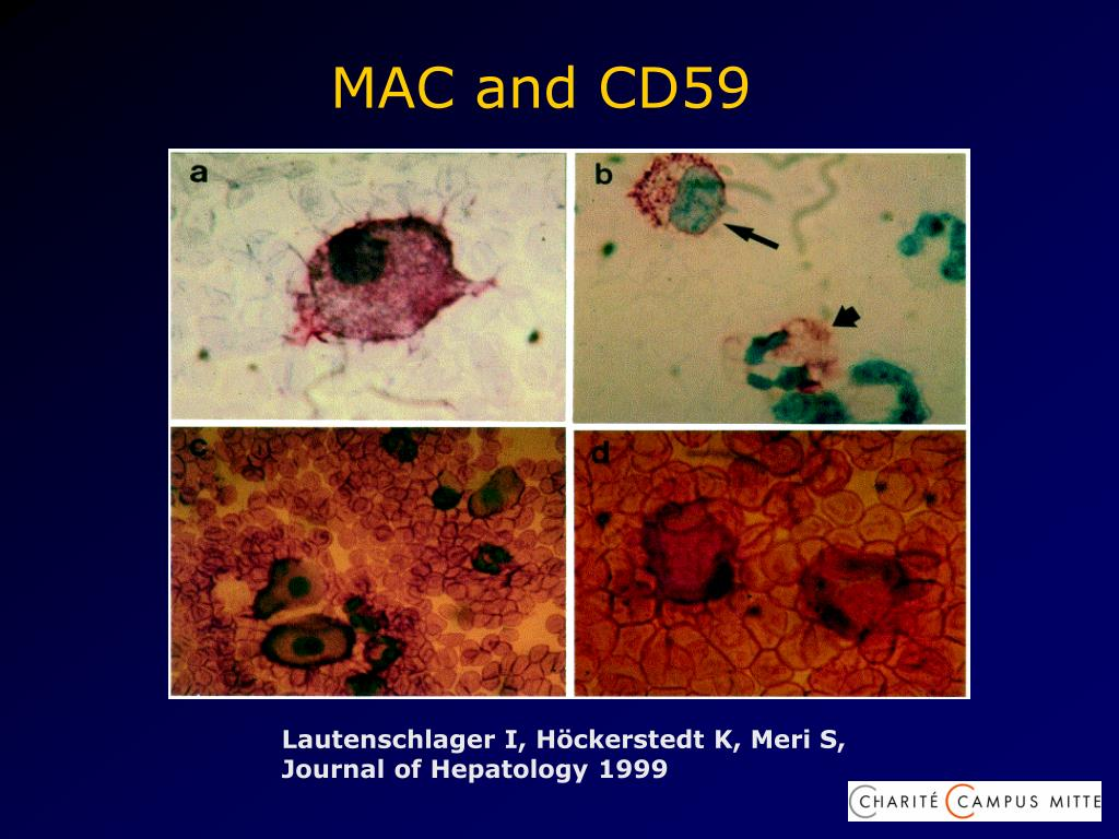 MAC and CD59