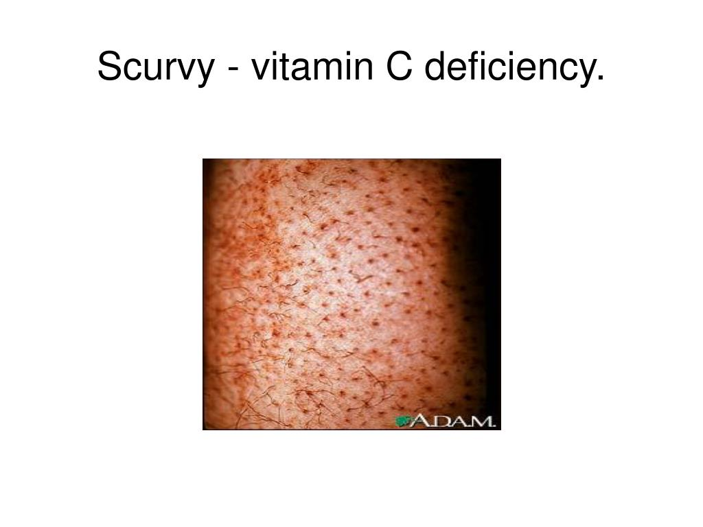 Scurvy - vitamin C deficiency.