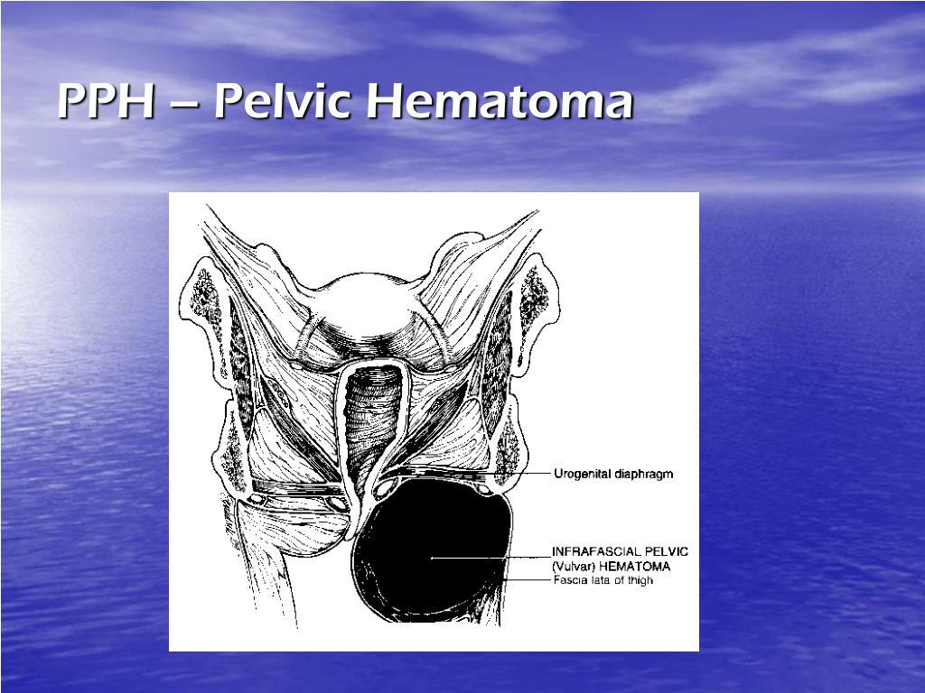 PPH – Pelvic Hematoma