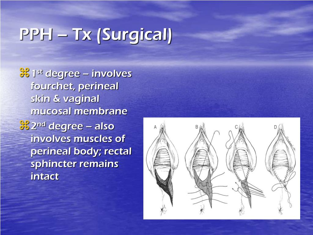 PPH – Tx (Surgical)