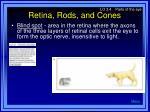 retina rods and cones13