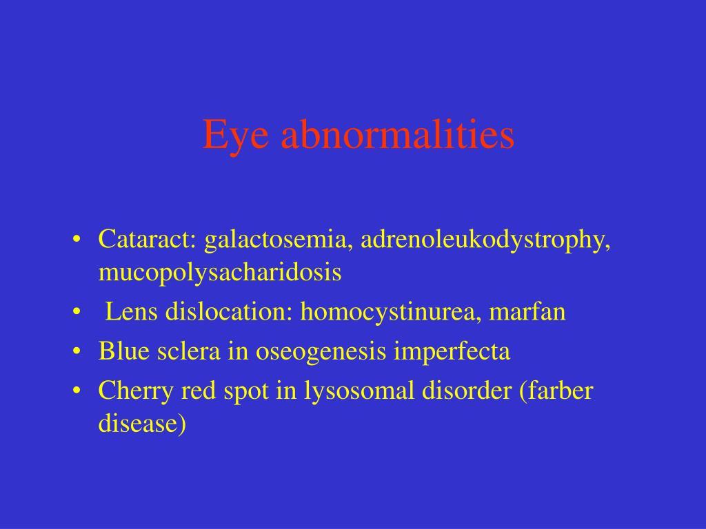 Eye abnormalities