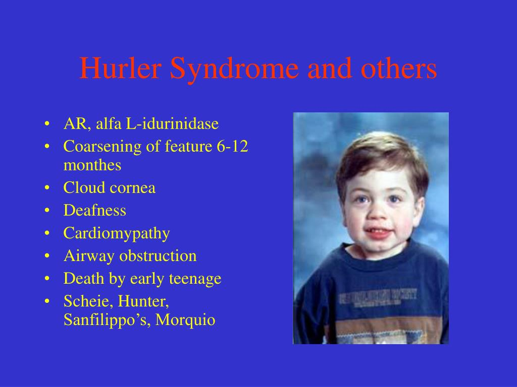 Hurler Syndrome and others